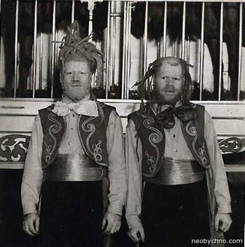 Братья Мьюз, негры-альбиносы