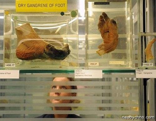 Самые патологические музеи мира