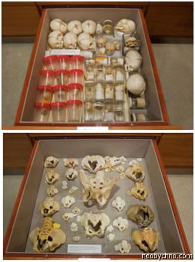 Коллекции детских костей